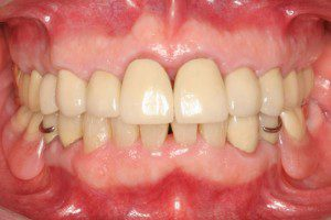 Full Mouth Rehab with Partial Denture After