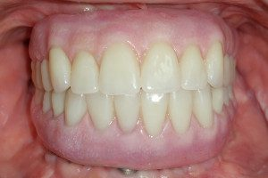Hybrid with Orthognathic Surgery After