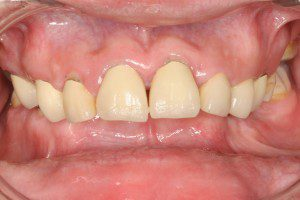 Hybrid with Orthognathic Surgery before
