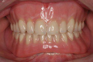 Implant Retained Dentures After