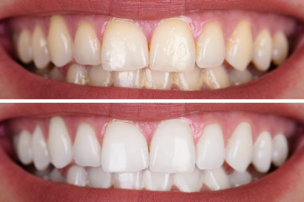 Teeth Whitening In Wilkesboro And Wilkes County Area